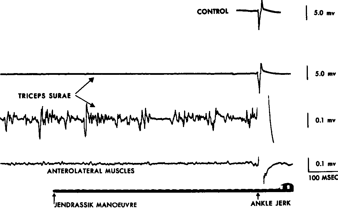 Figure 3 from Methods of tendon jerk reinforcement  The role