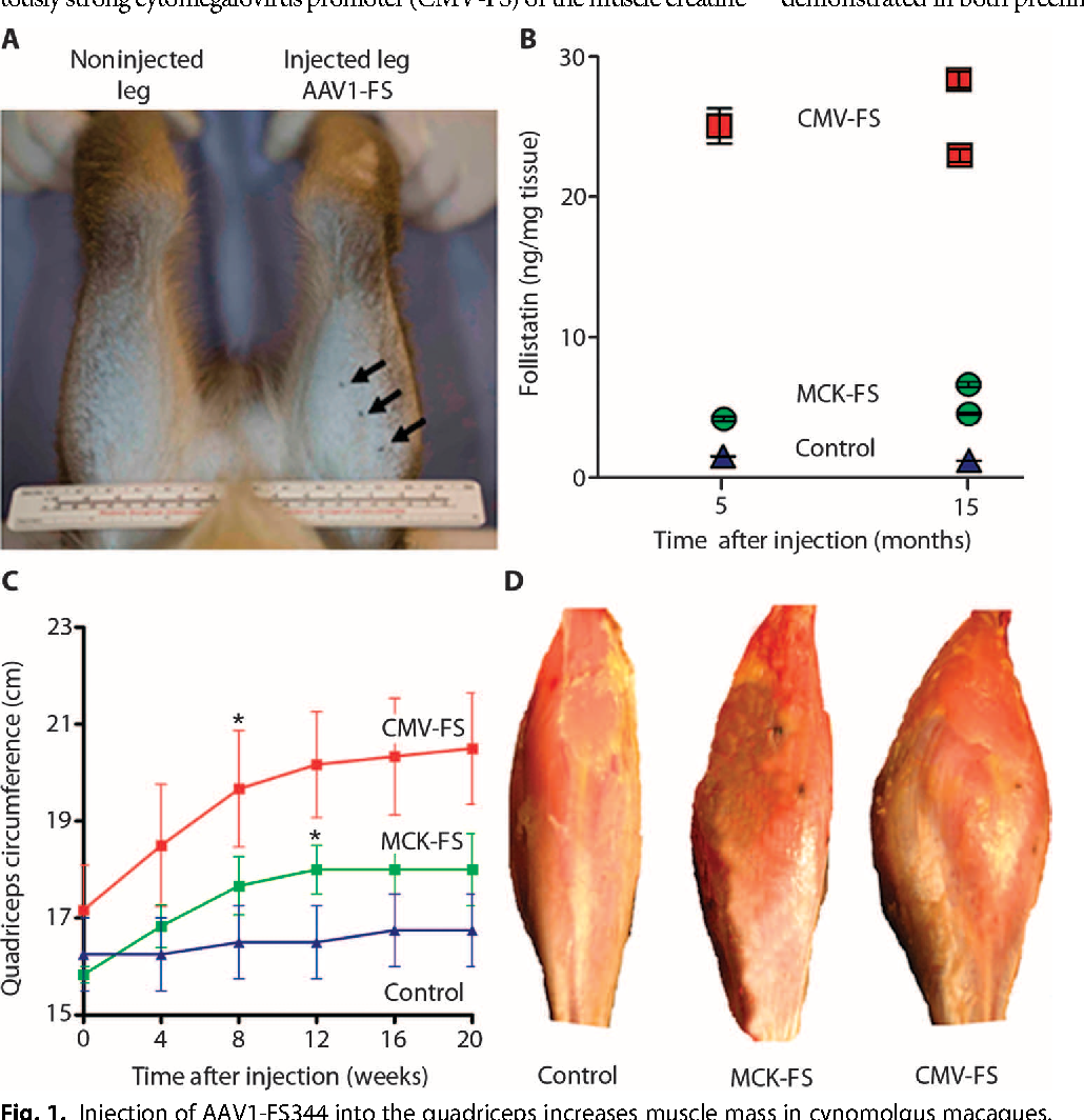 Follistatin gene delivery enhances muscle growth and