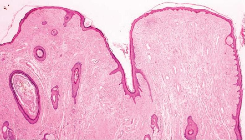 Fibrofolliculoma/trichodiscoma and fibrous papule