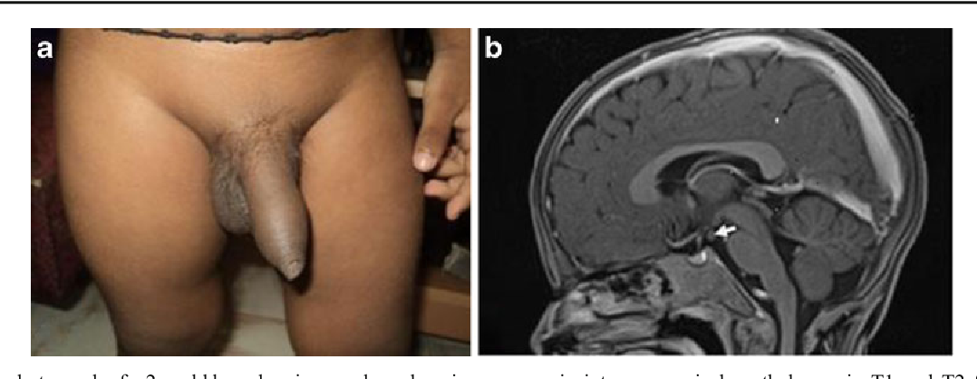 Figure 2 from Precocious Puberty—Perspectives on Diagnosis