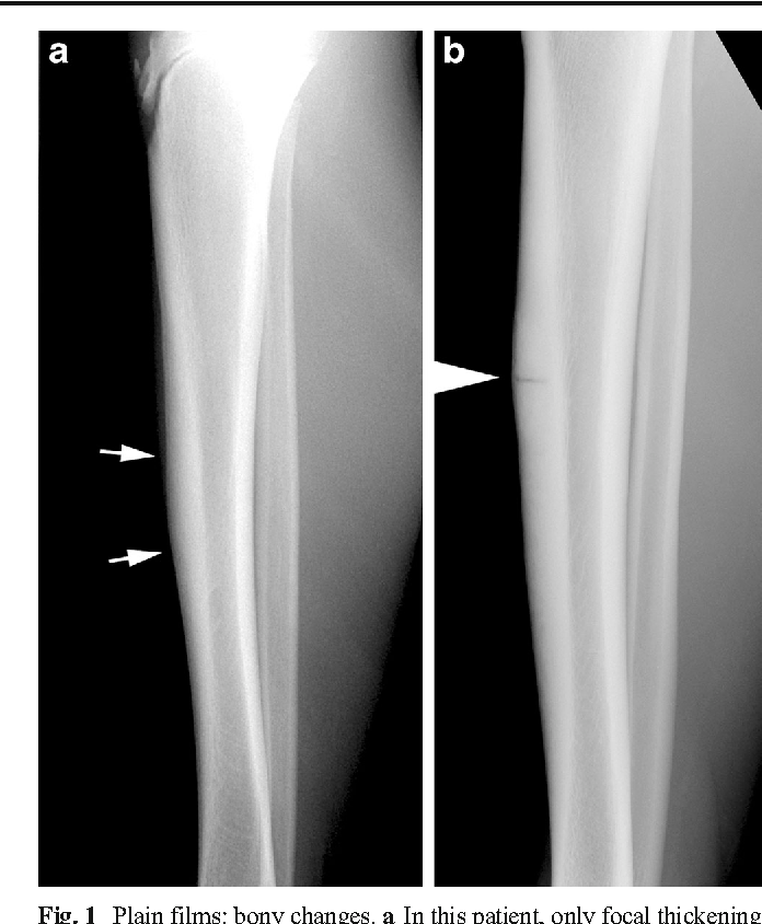 Figure 1 From Tibial Stress Phenomena And Fractures Imaging Evaluation Semantic Scholar