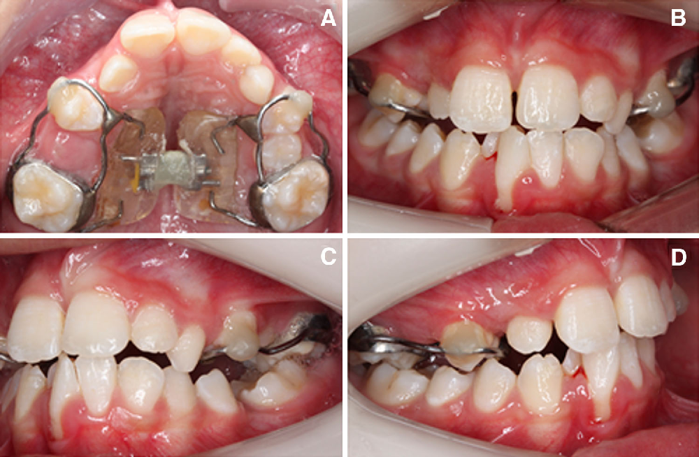 Figure 6 From Frontonasal Dysplasia Oral Features