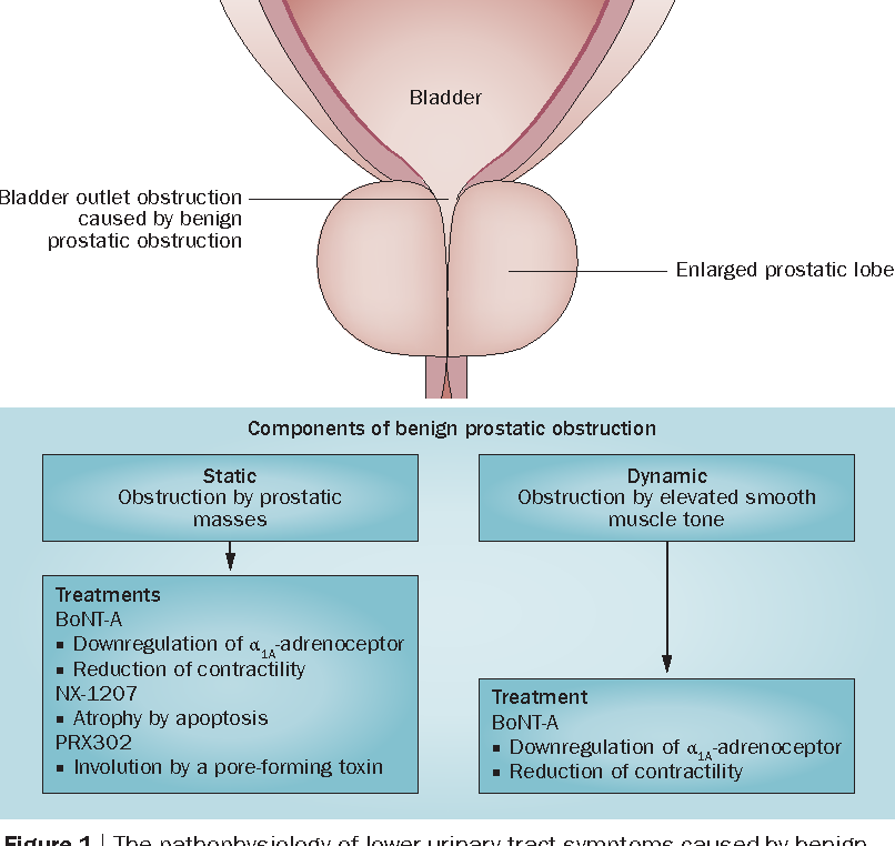 Figure 1 from New intraprostatic injectables and prostatic