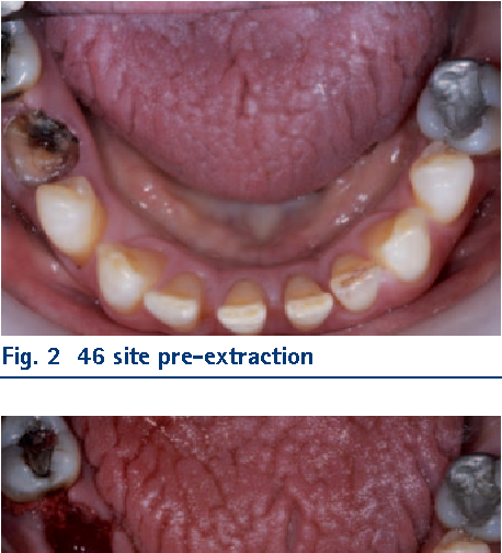 Figure 2 From Interventions For The Prevention Of Dry Socket An Evidence Based Update Semantic Scholar