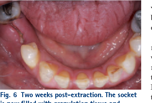 Figure 6 From Interventions For The Prevention Of Dry Socket An Evidence Based Update Semantic Scholar
