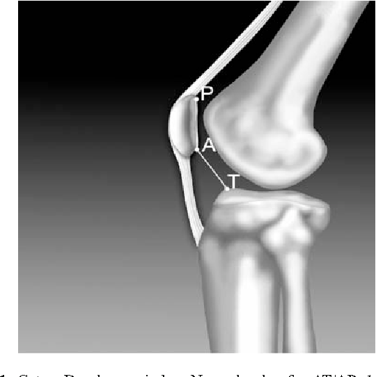Figure 1 From Tibial Tubercle Osteotomy In Patello Femoral