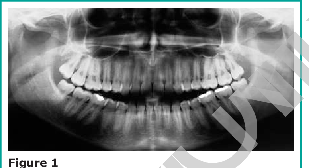 Figure 1 From Dense Bone Island Of The Jaw A Case Report