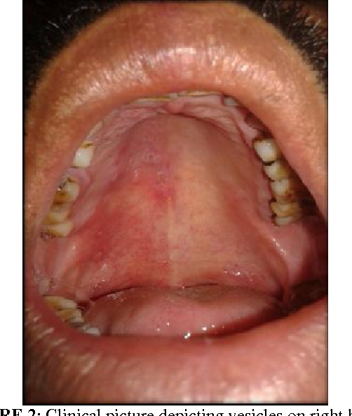 Figure 2 from HERPES ZOSTER OF RIGHT MAXILLARY DIVISION OF