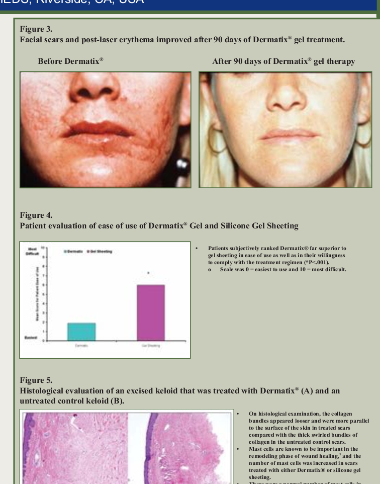 Pdf A Review Of The Biologic Effects Clinical Efficacy And Safety Of Silicone Elastomer Sheeting For Hypertrophic And Keloid Scar Treatment And Management Semantic Scholar