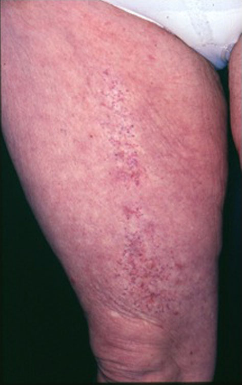 Figure 1 From Radiation Dermatitis An Overview Semantic Scholar