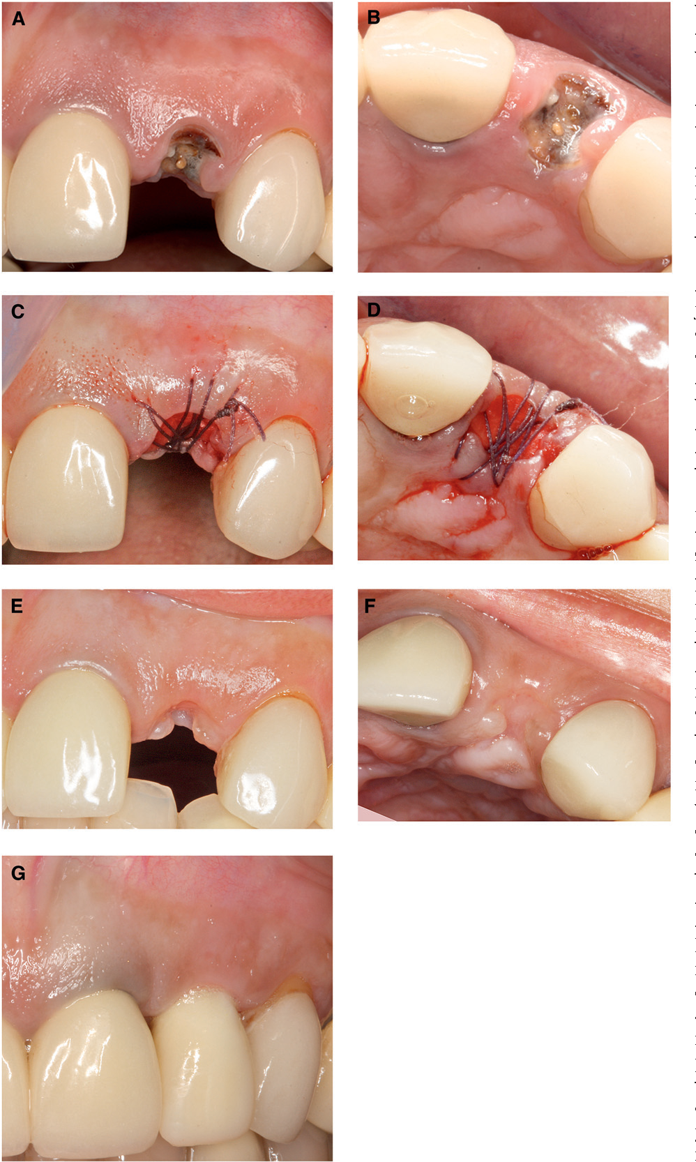 Pdf Histologic Analysis Of Healing After Tooth Extraction With Ridge Preservation Using Mineralized Human Bone Allograft Semantic Scholar