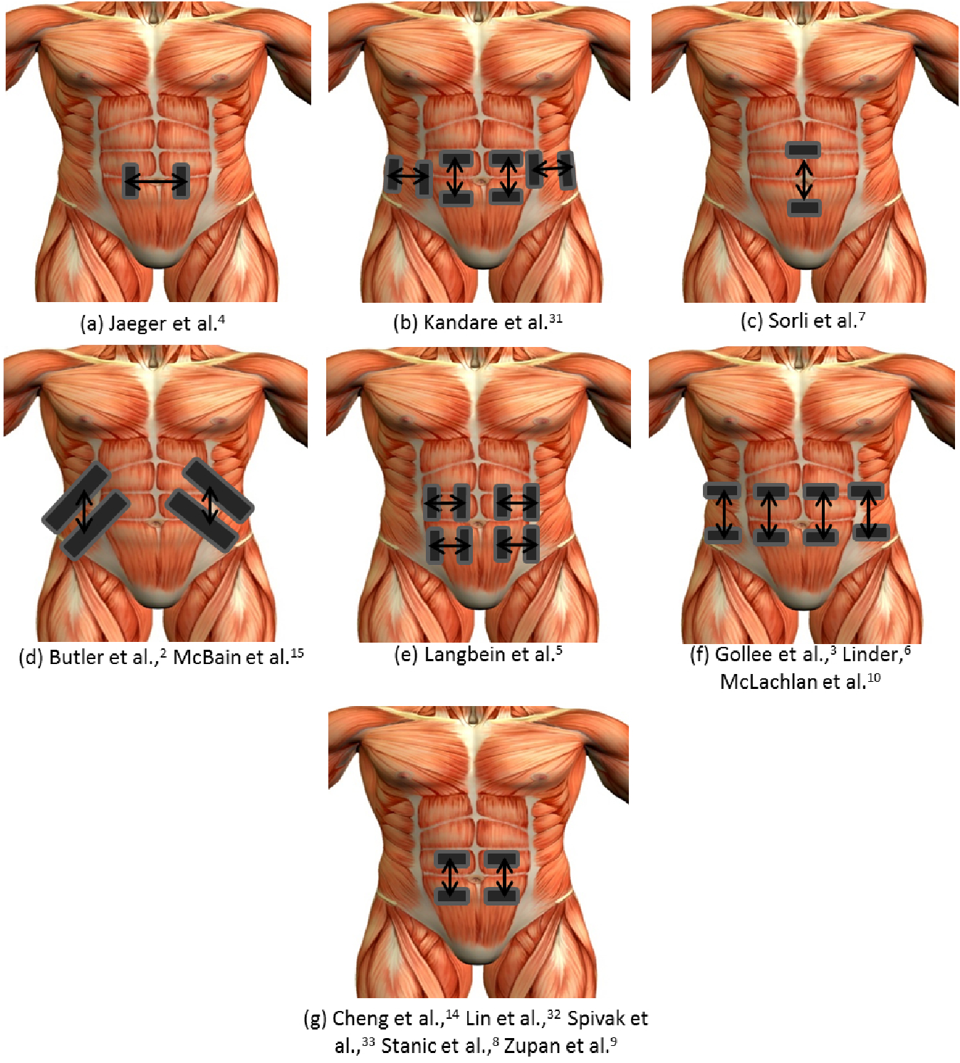 Figure 1 From Abdominal Functional Electrical Stimulation To Improve Respiratory Function After Spinal Cord Injury A Systematic Review And Meta Analysis Semantic Scholar