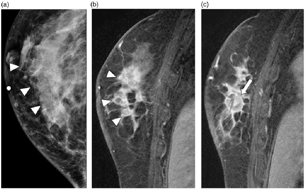 Figure 1 From Mr And Mammographic Imaging Features Of Her2