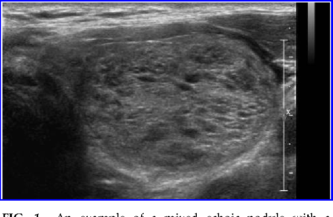 Figure 1 From Partially Cystic Thyroid Nodules On Ultrasound
