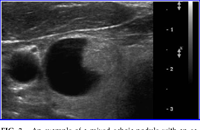Figure 3 From Partially Cystic Thyroid Nodules On Ultrasound