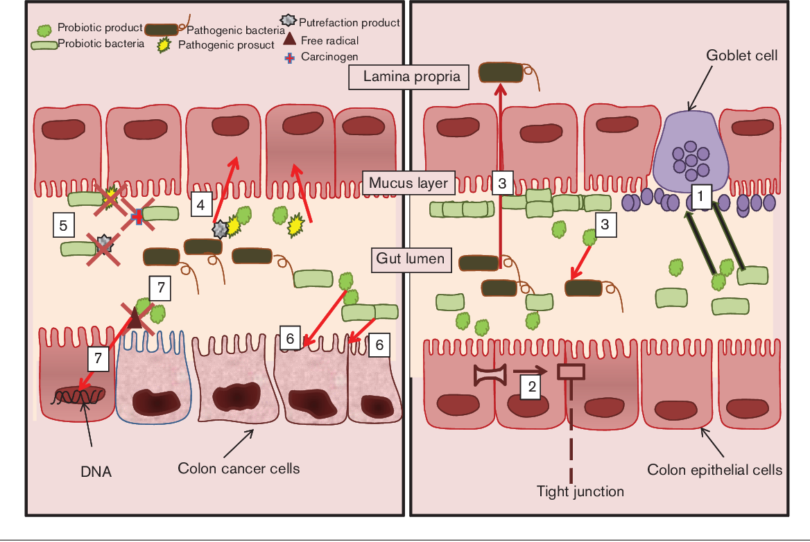 Figure 1 From Probiotics In Colorectal Cancer Crc With Emphasis On Mechanisms Of Action And Current Perspectives Semantic Scholar