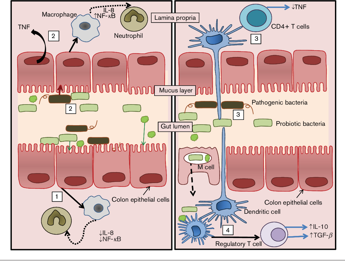 Figure 2 From Probiotics In Colorectal Cancer Crc With Emphasis On Mechanisms Of Action And Current Perspectives Semantic Scholar