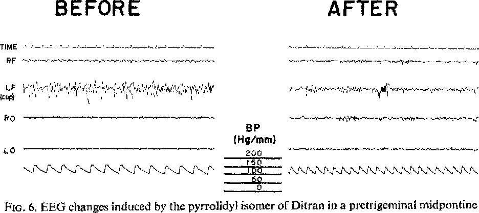 FIG, 6. EEG changes induced by the pyrrolidyl isomer of Ditran in a pretrigeminai midpontine transected cat.