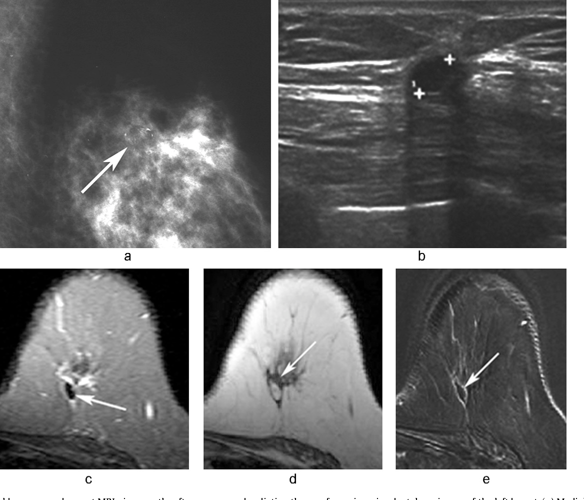 Figure 4 From Mri Of Fat Necrosis Of The Breast The Black Hole