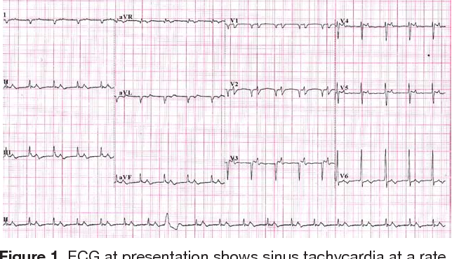 Figure 1 from Heart failure and pulsus alternans: an unusual