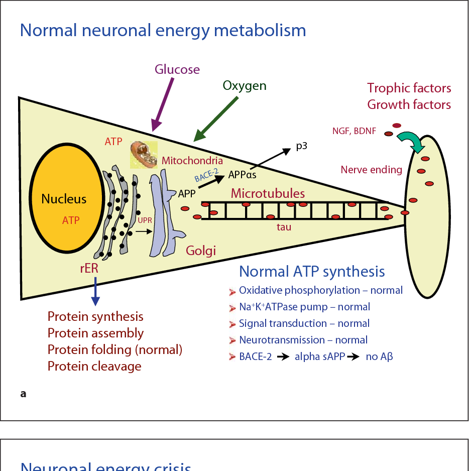 Pathophysiology of neuronal energy crisis in Alzheimer's