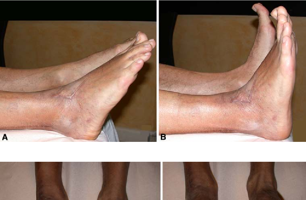 Figure 5 From Double Tendon Transfer For Correction Of Drop Foot