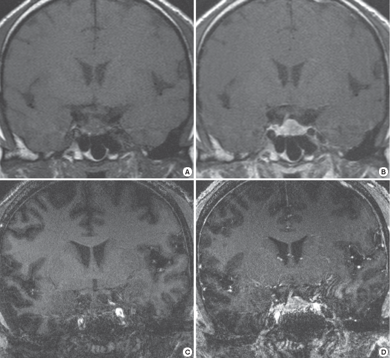 Figure 1 from Early Experience of Pre- and Post-Contrast 7 0