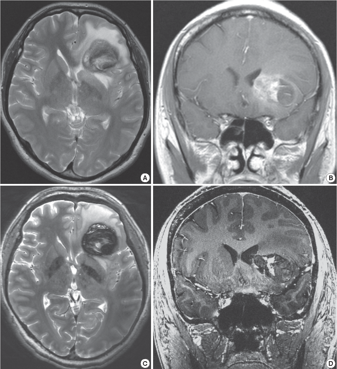 Figure 4 from Early Experience of Pre- and Post-Contrast 7 0