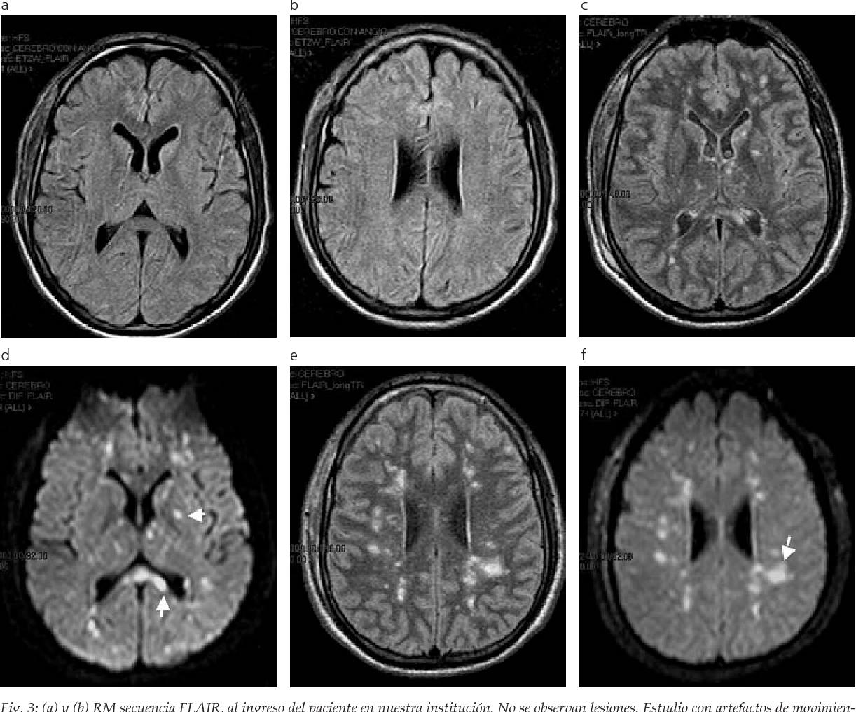 Resonancia que cerebral es magnetica
