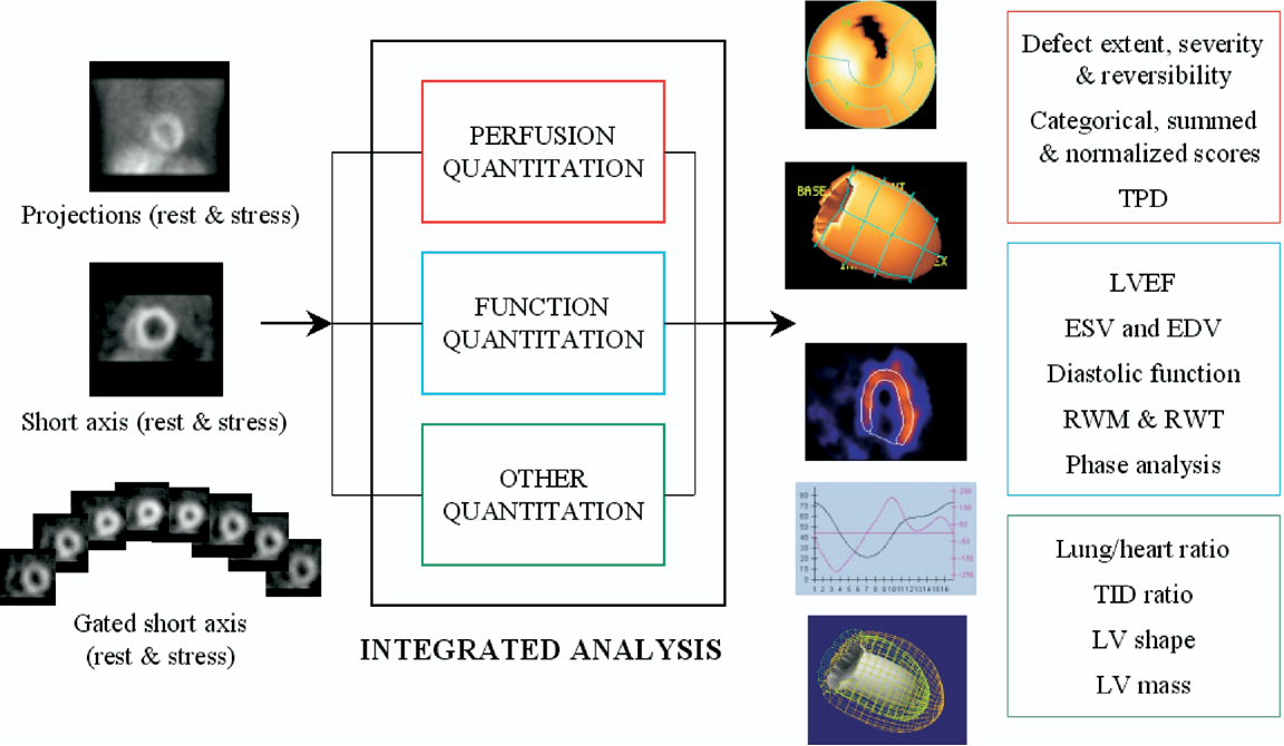 Figure 2 from Quantitation in gated perfusion SPECT imaging