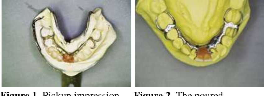 Figure 3 from The need for accurate pickup impressions