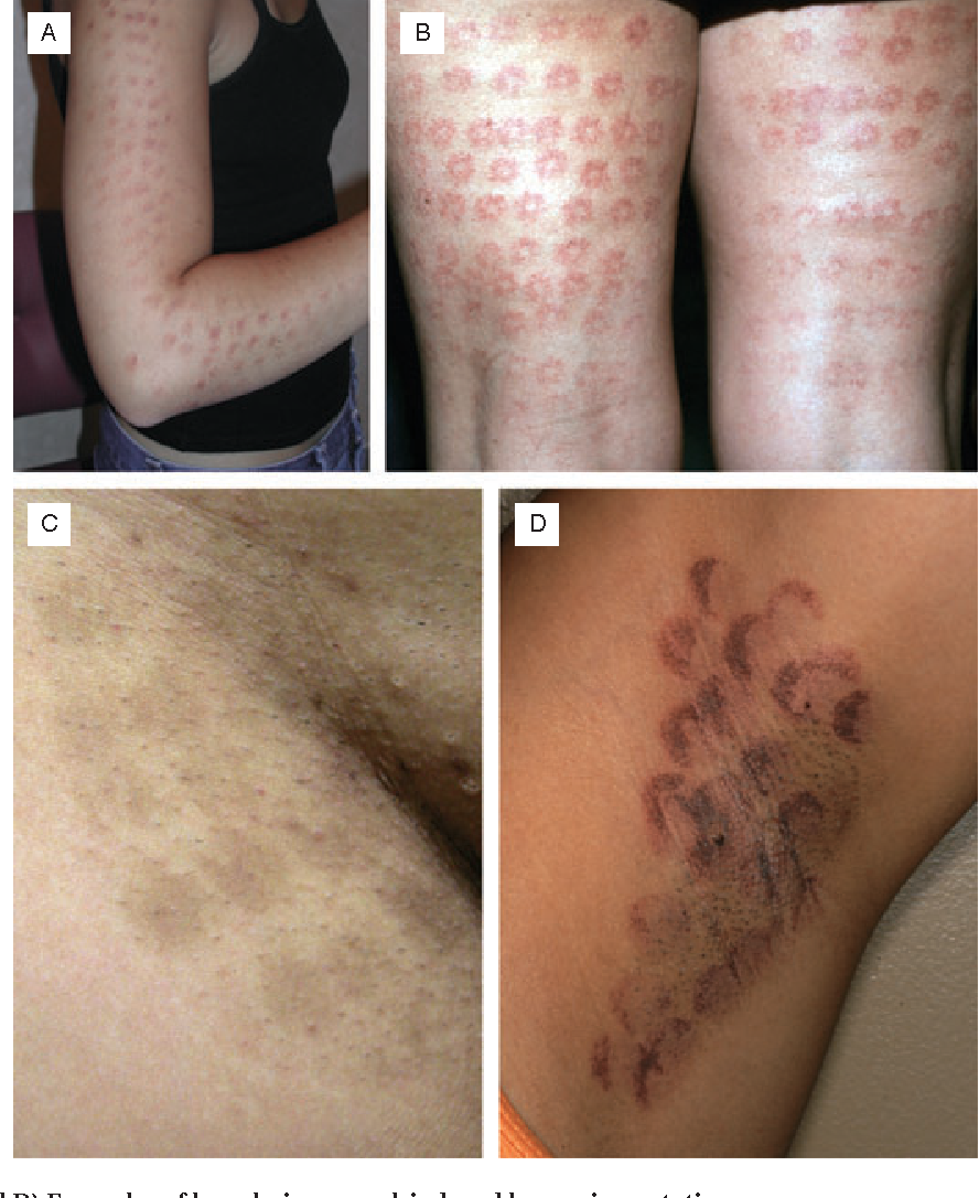 Figure 3 From Laser Hair Removal Semantic Scholar