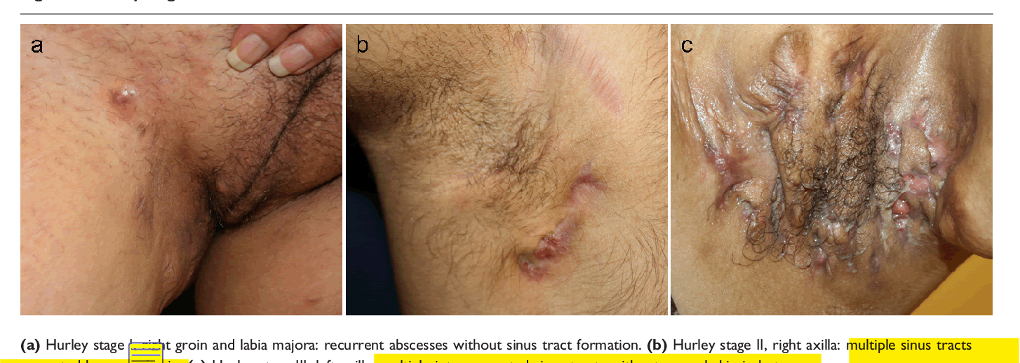 Figure 1 From Update On Hidradenitis Suppurativa Connecting The Tracts Semantic Scholar