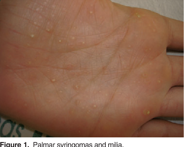 Figure 1 from Milia with calcium deposits on the palms and