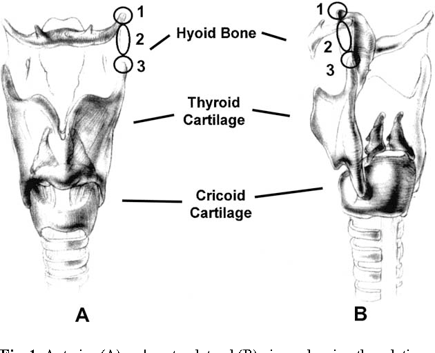 Pdf The Use Of Triamcinolone In Thyrohyoid Syndrome Semantic Scholar