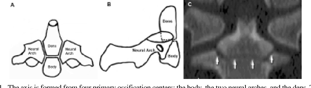 Figure 1 From Odontoid Synchondrosis Fractures In Children Semantic Scholar This shareable pdf can be hosted on any platform or network and is fully compliant with publisher copyright. odontoid synchondrosis fractures
