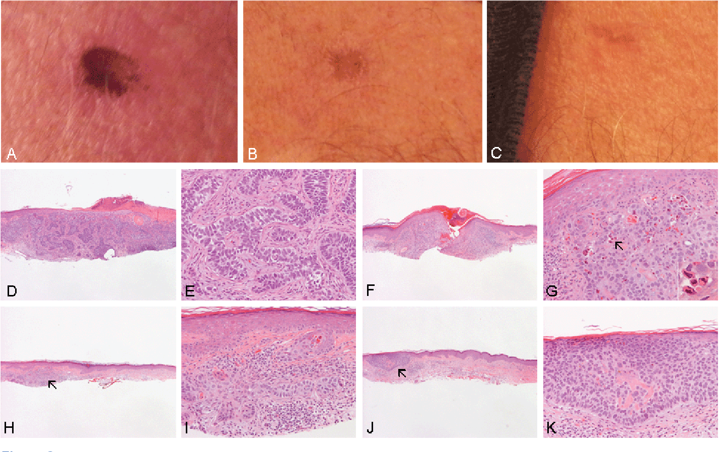 Pdf Management Of Basal Cell Carcinoma Of The Skin Using Frankincense Boswellia Sacra Essential Oil A Case Report Semantic Scholar