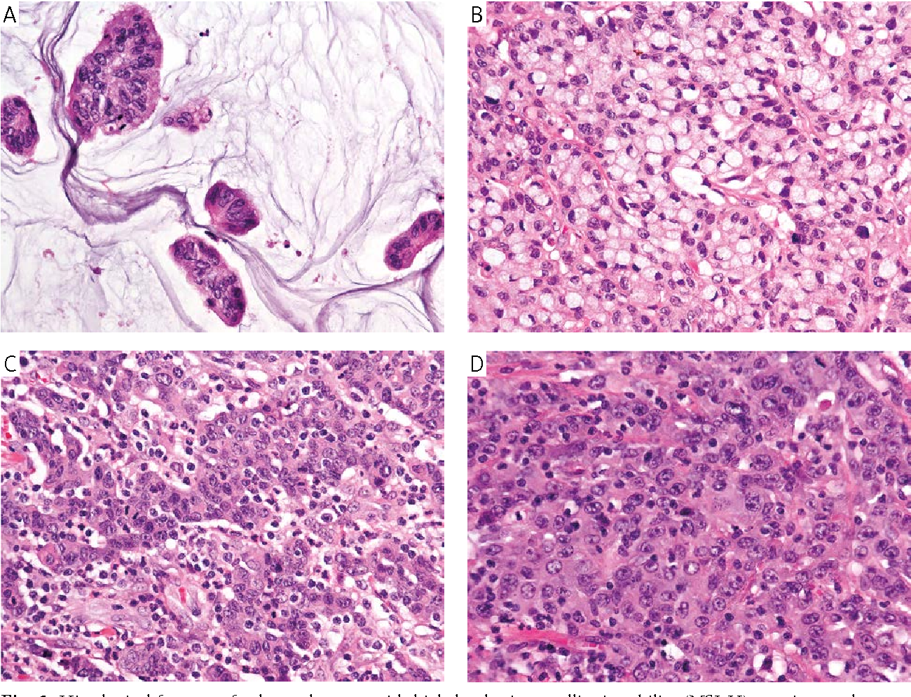 Figure 5 From Microsatellite Instability In Colorectal Cancer Clinicopathological Significance Semantic Scholar