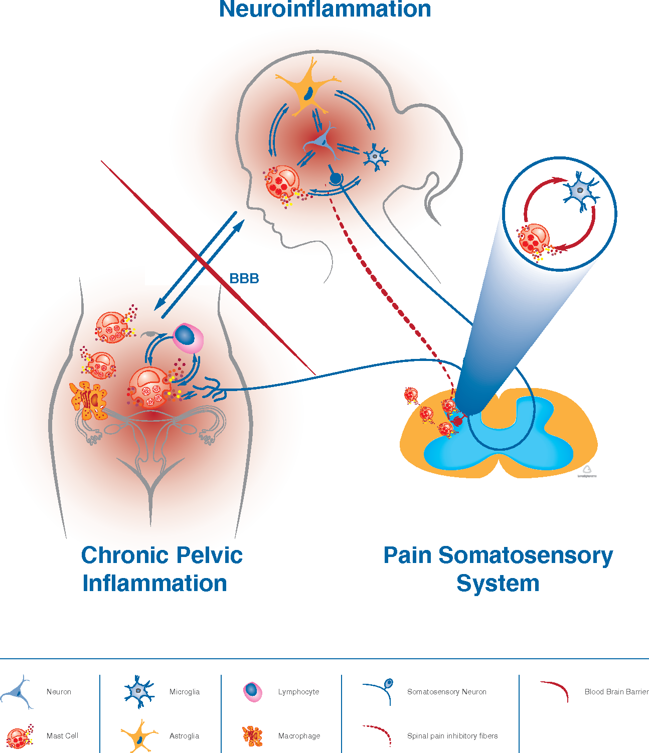 Figure 1 from Mast cells in chronic inflammation, pelvic