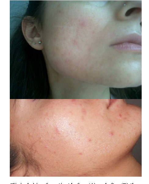 Figure 1 from Inositol in women suffering from acne and PCOS