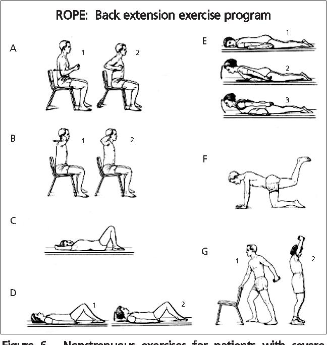 25+ Rehabilitation of osteoporosis program exercise rope viral