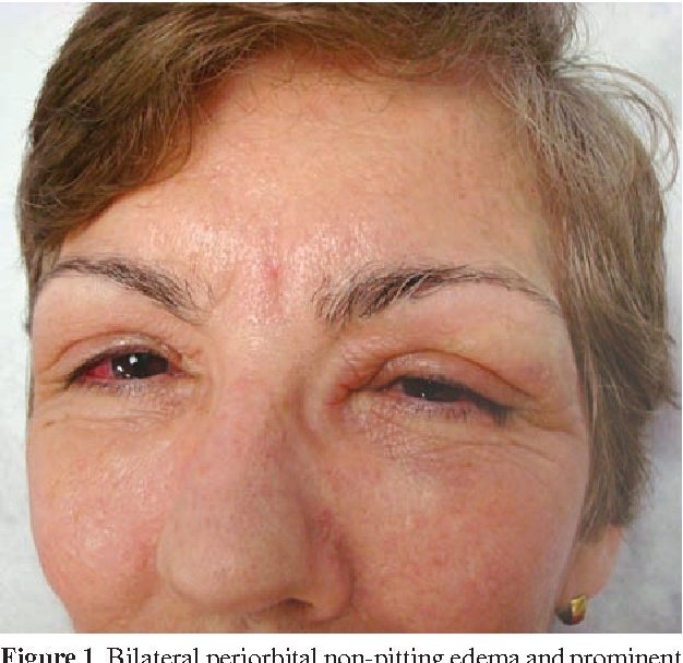 Figure 1 from Persistent eyelid swelling in a patient with
