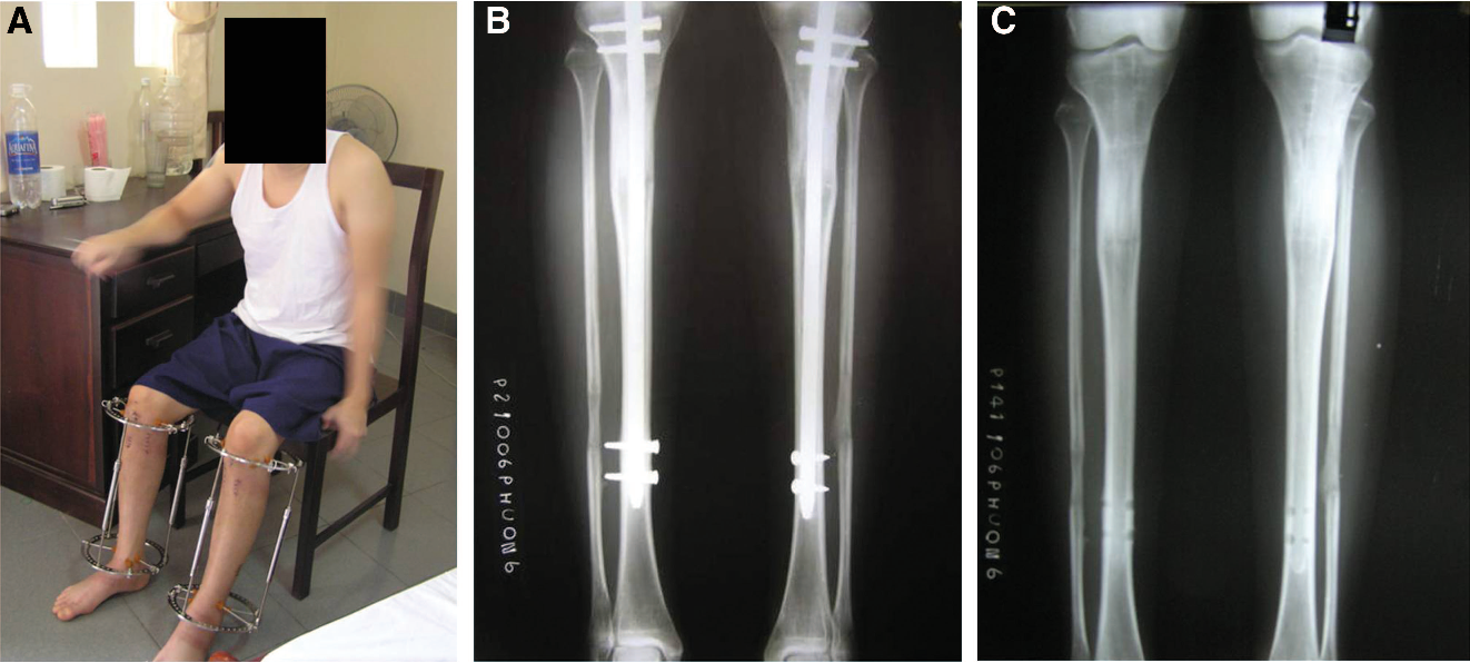 Figure 3 from Tibial Lengthening Over an Intramedullary Nail