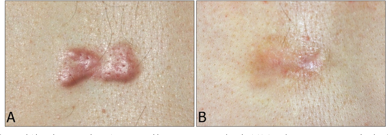 Figure 1 From Pilot Study Of The Efficacy Of 578 Nm Copper Bromide Laser Combined With Intralesional Corticosteroid Injection For Treatment Of Keloids And Hypertrophic Scars Semantic Scholar