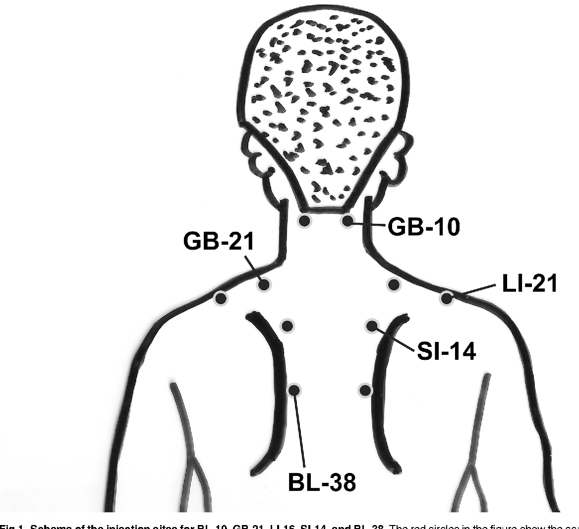 Figure 1 from Multi-Acupuncture Point Injections and Their