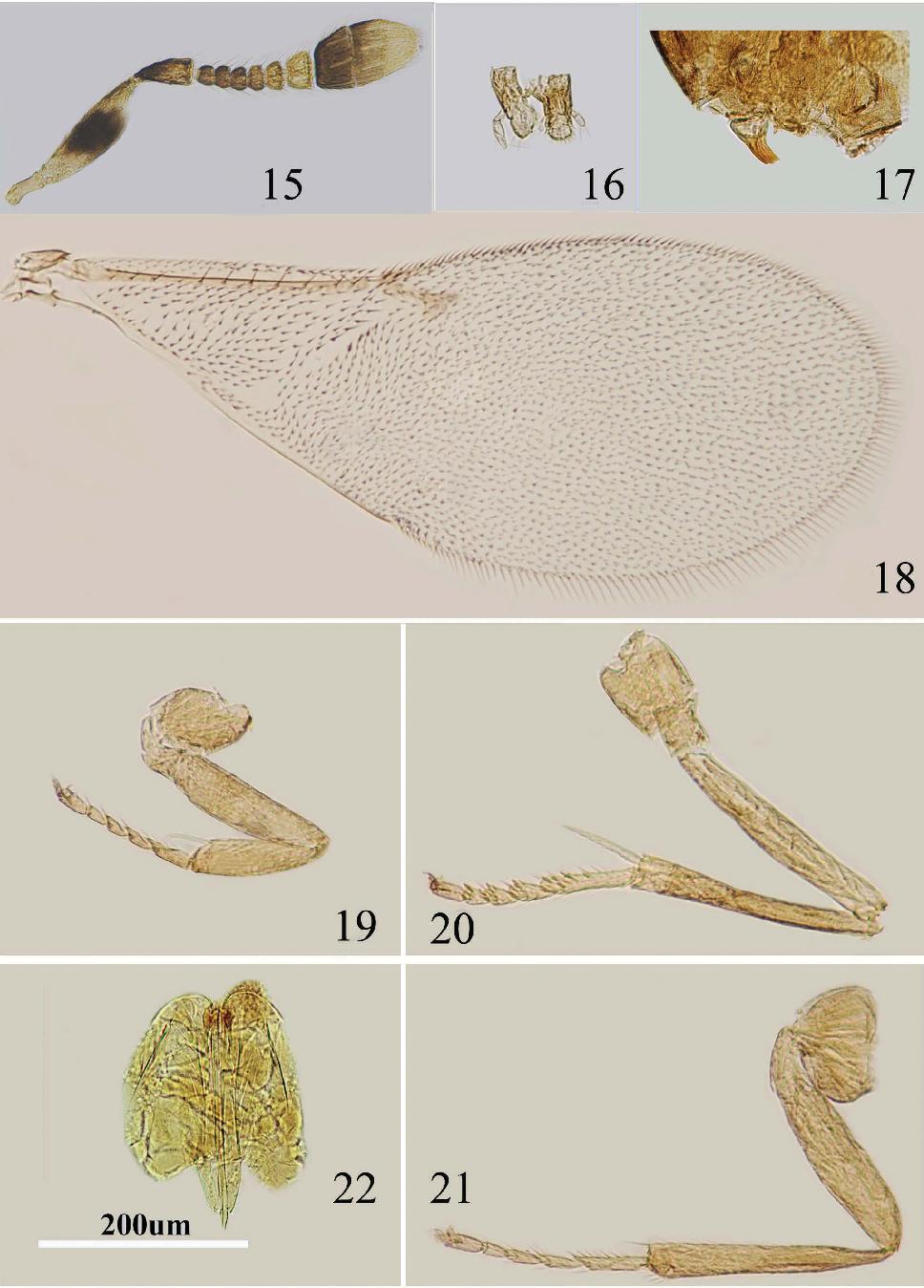 figure 15–22