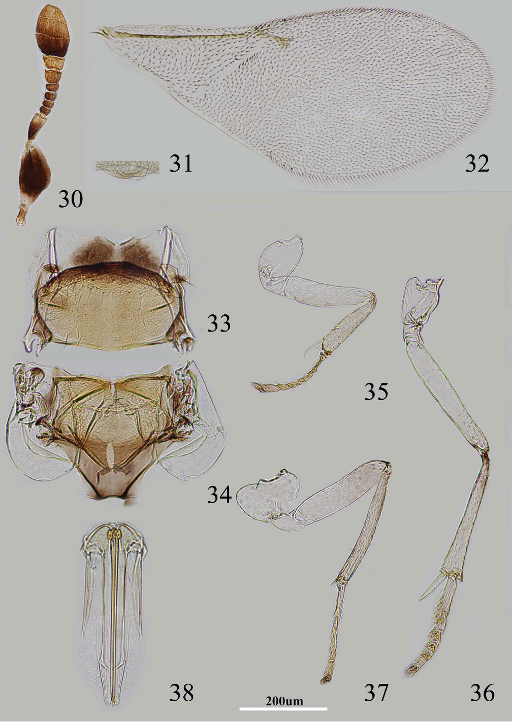 figure 30–38