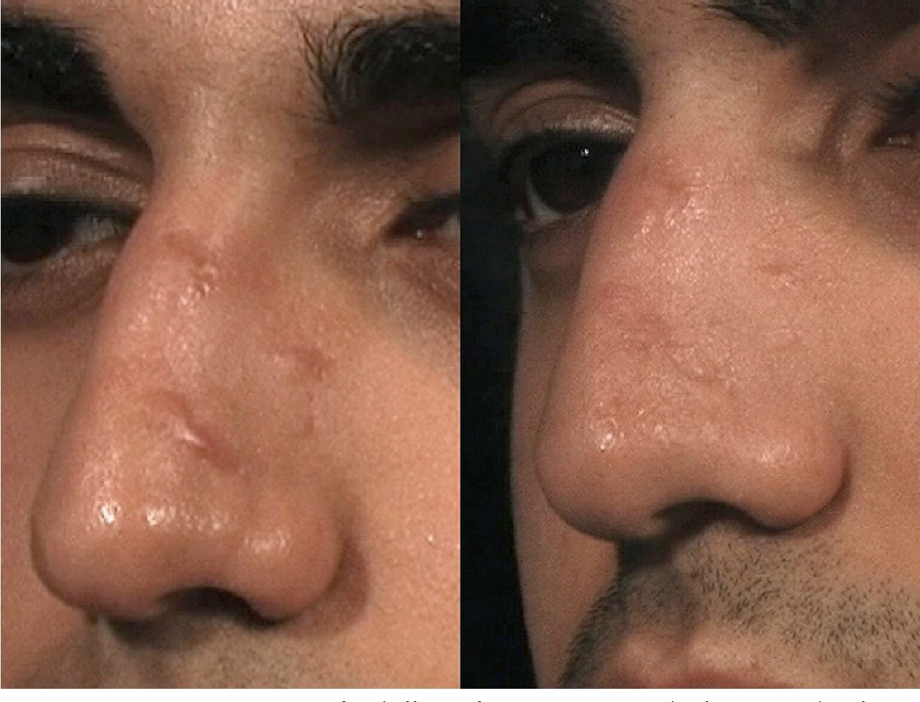 Figure 1 from Laser treatment for improvement and