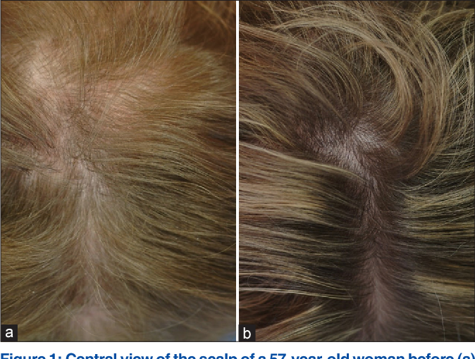 Pdf The Effectiveness Of Finasteride And Dutasteride Used For 3 Years In Women With Androgenetic Alopecia Semantic Scholar