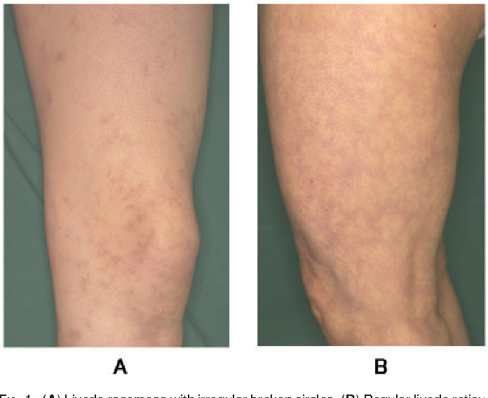 PDF] Differences in anti-phosphatidylserine-prothrombin